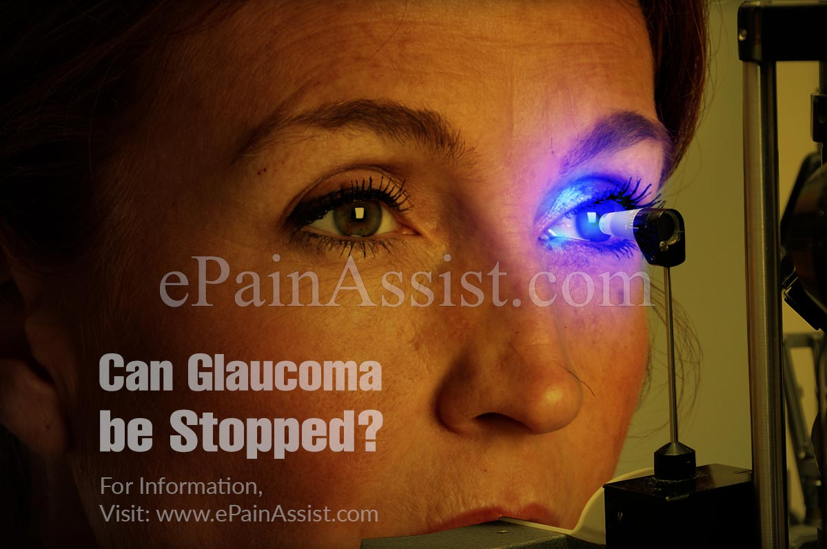 Can Glaucoma be Stopped?