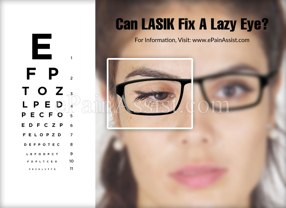 Can LASIK Fix A Lazy Eye?