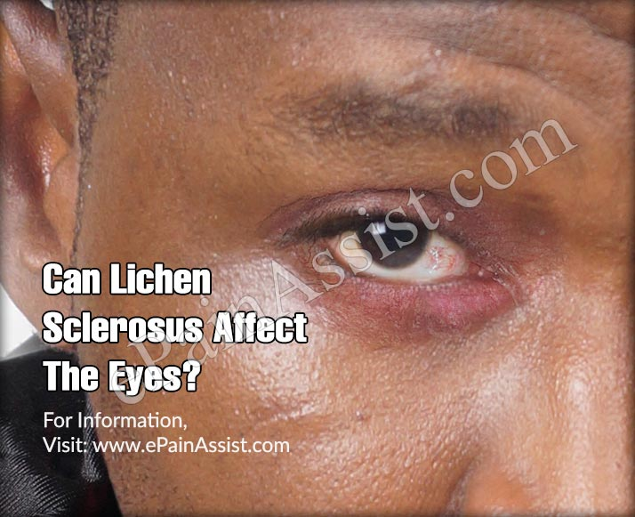 Can Lichen Sclerosus Affect The Eyes?