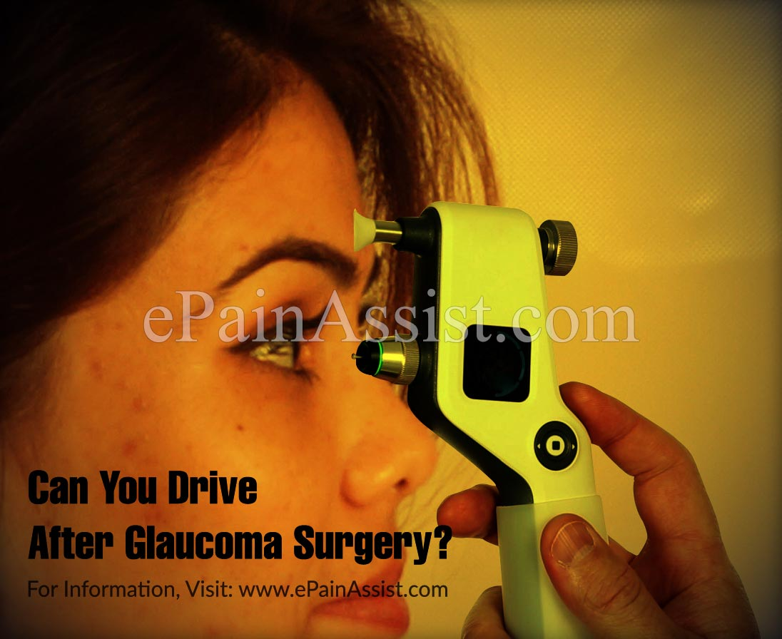 Can You Drive After Glaucoma Surgery?