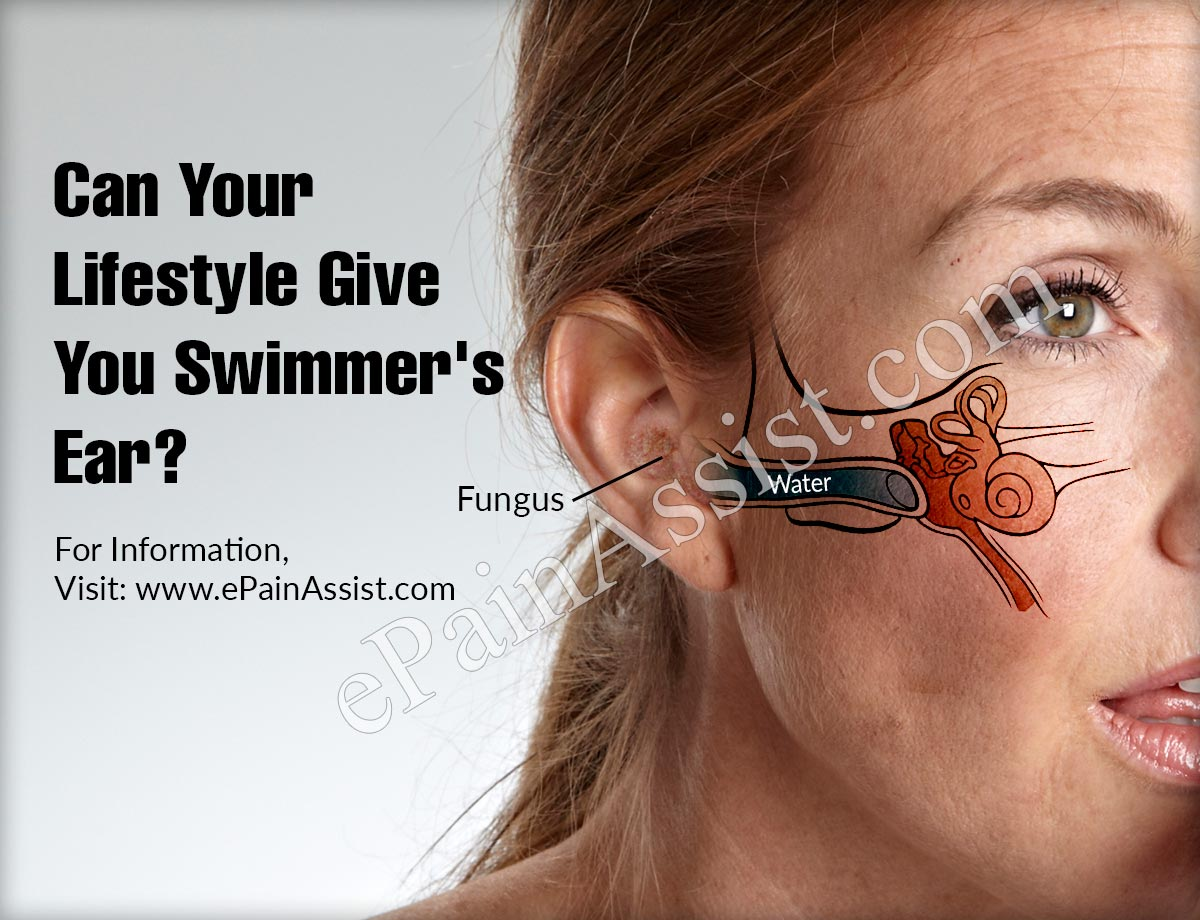 Can Your Lifestyle Give You Swimmer's Ear?