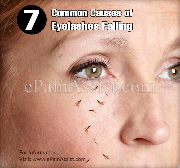 7 Common Causes of Eyelashes Falling or Thinning