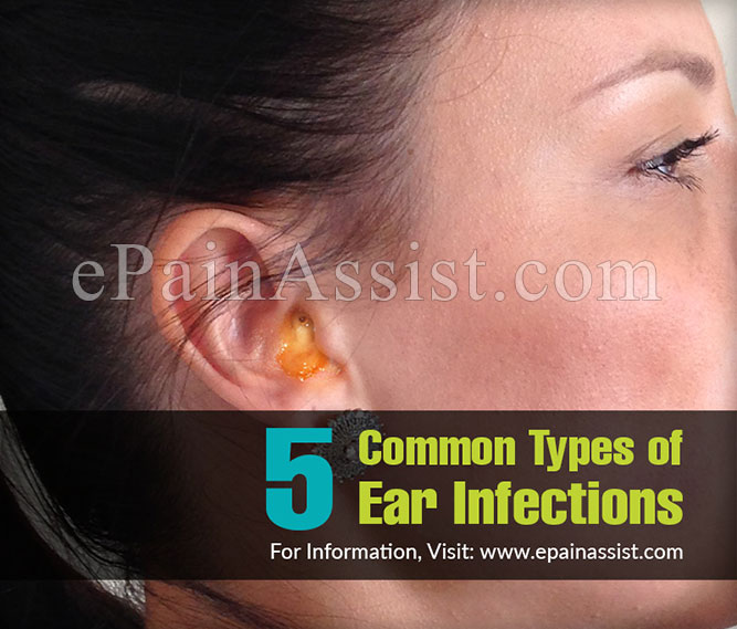 5 Common Types of Ear Infections