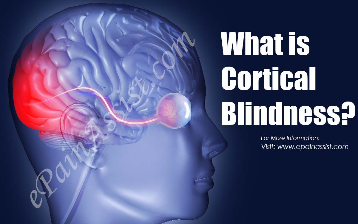 What is Cortical Blindness?