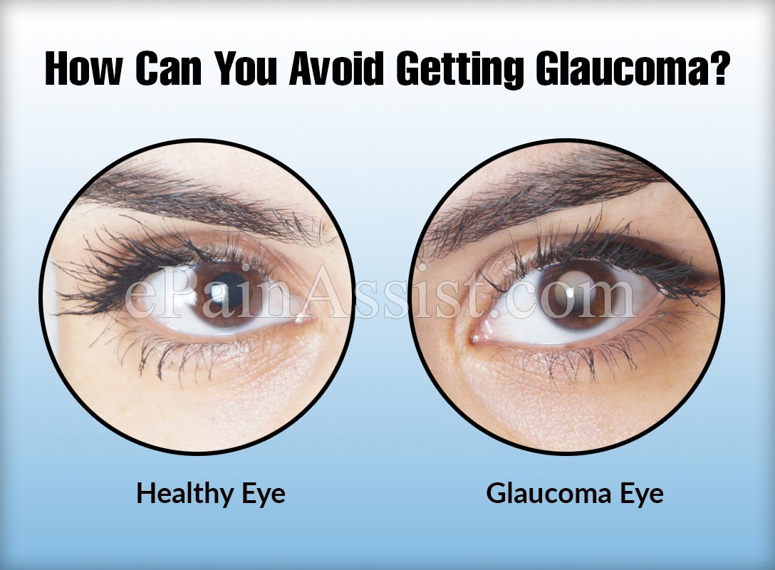 how can you avoid getting glaucoma