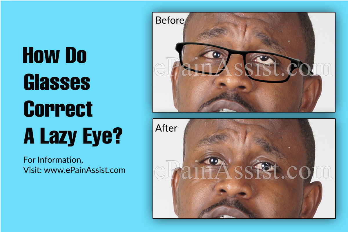 How Do Glasses Correct A Lazy Eye?