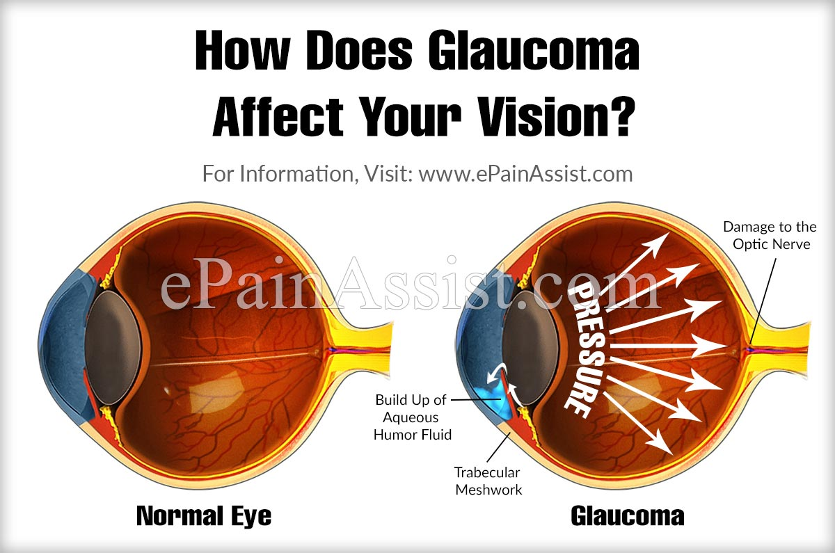 How Does Glaucoma Affect Your Vision?