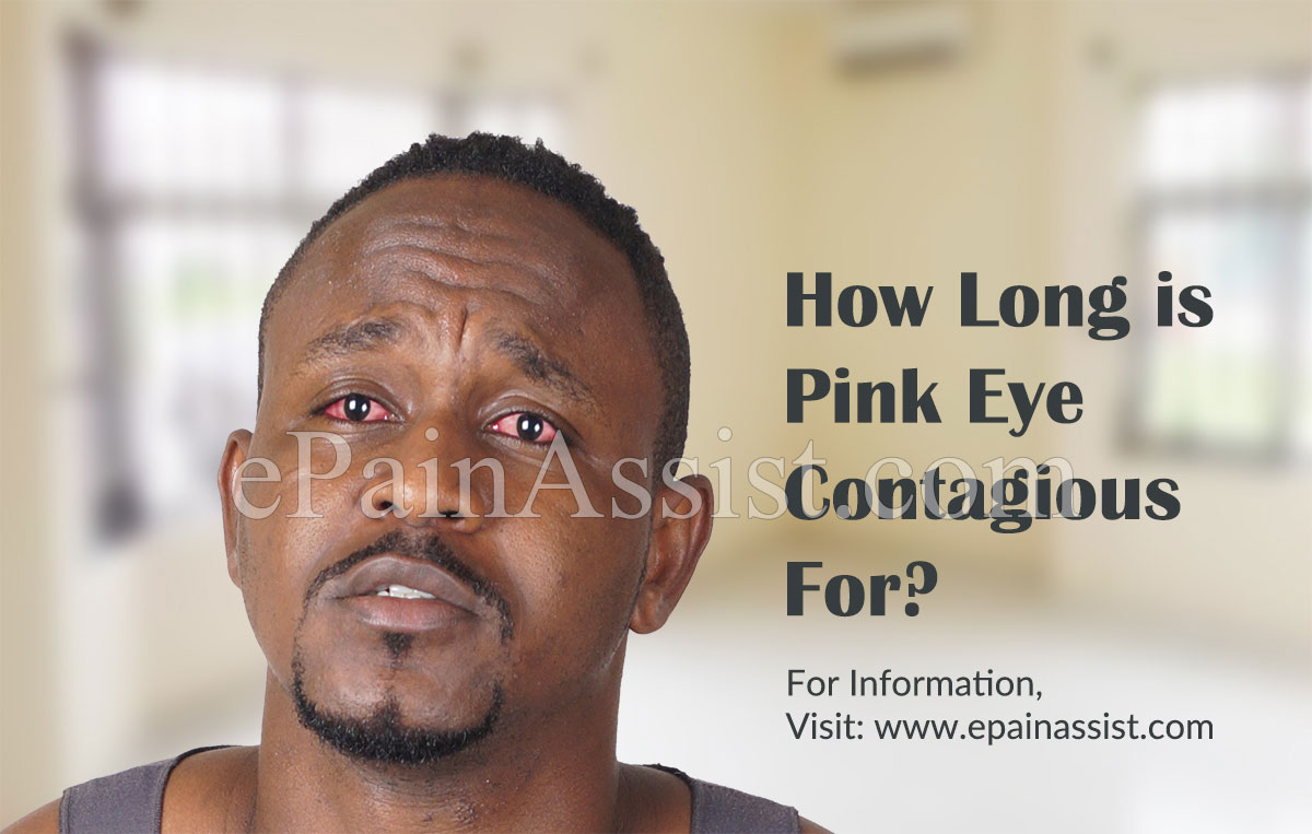 How Long is Pink Eye Contagious For?