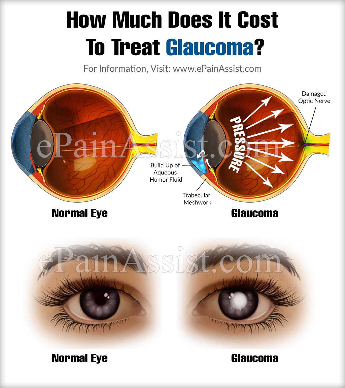 how much does it cost to treat glaucoma