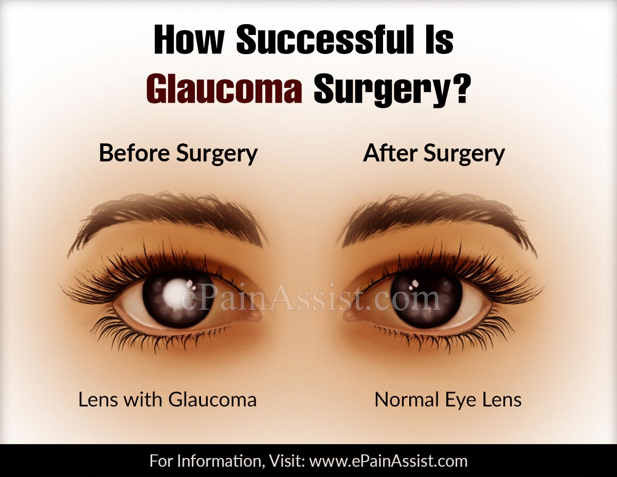 How Successful Is Glaucoma Surgery?