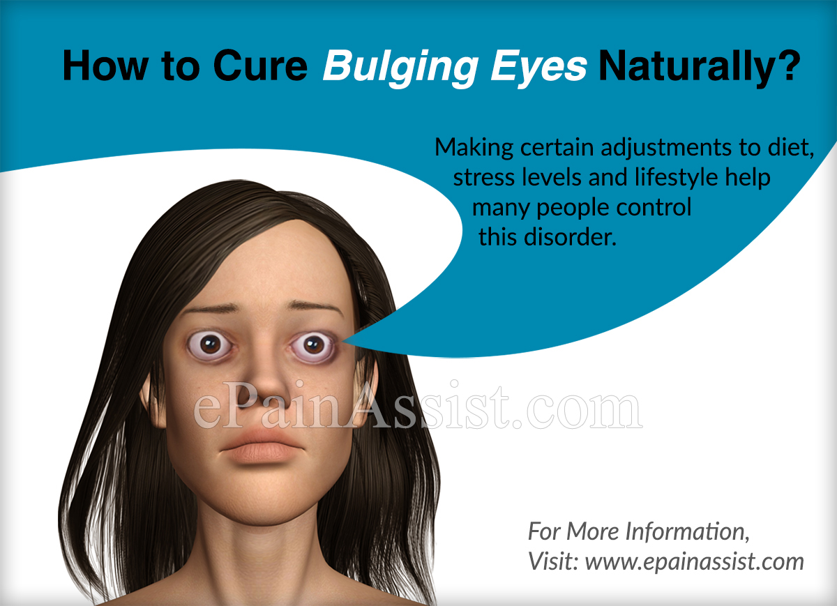 How to Cure Bulging Eyes Naturally?