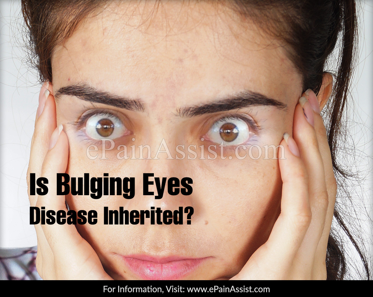 Is Bulging Eyes Disease Inherited