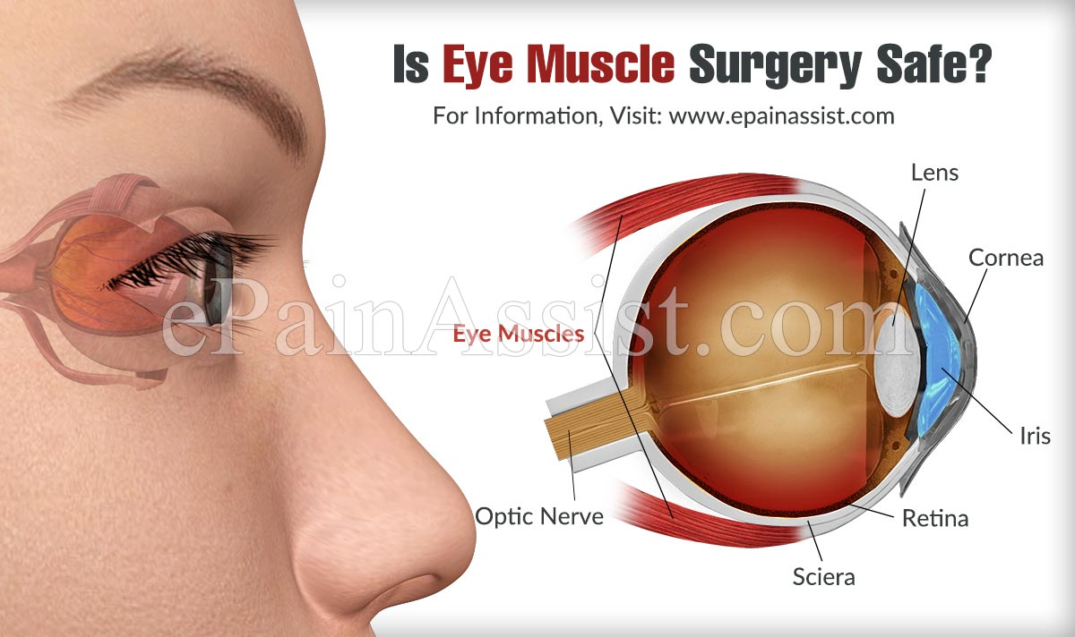 Is Eye Muscle Surgery Safe?