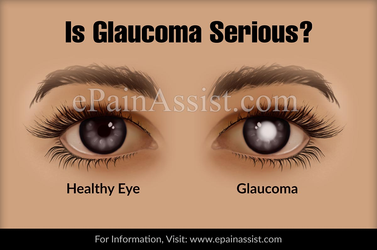 Is Glaucoma Serious?
