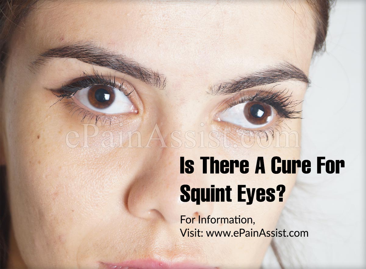 Is There A Cure For Squint Eyes?