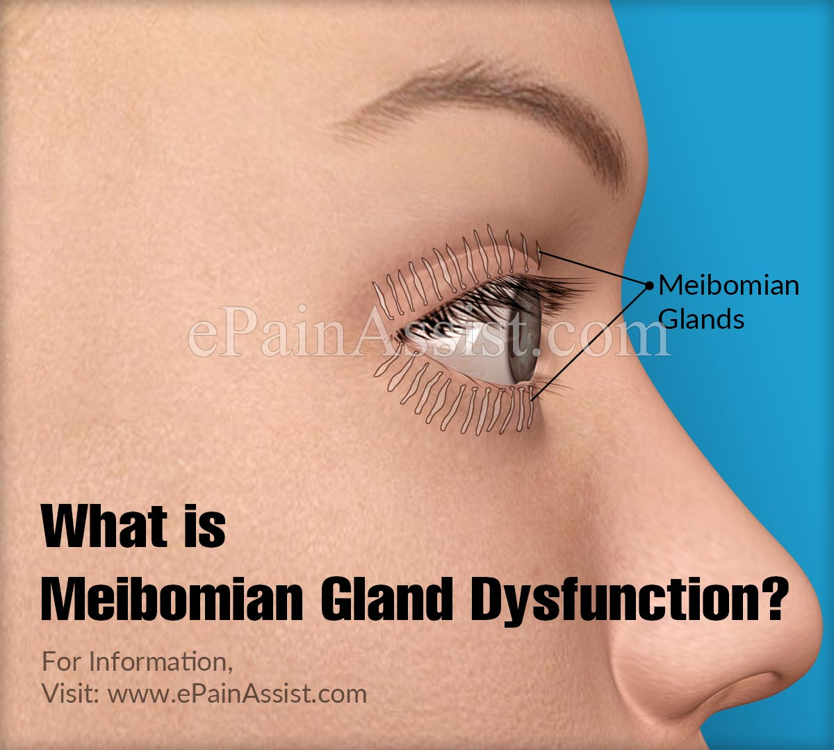 What is Meibomian Gland Dysfunction?