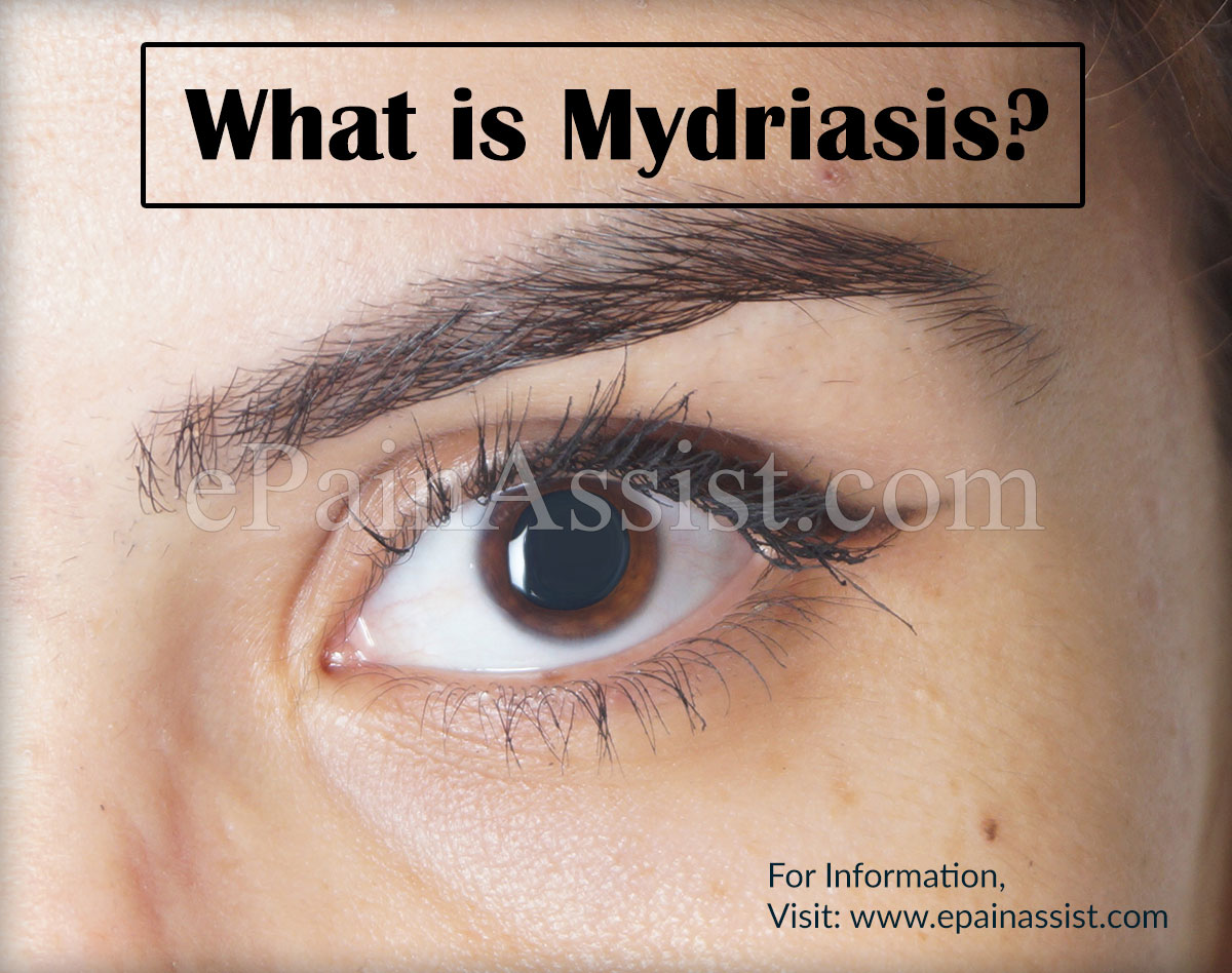 What is Mydriasis?