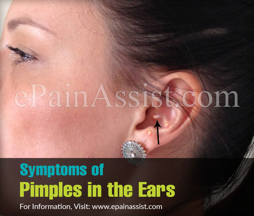 Symptoms of Pimples in the Ears