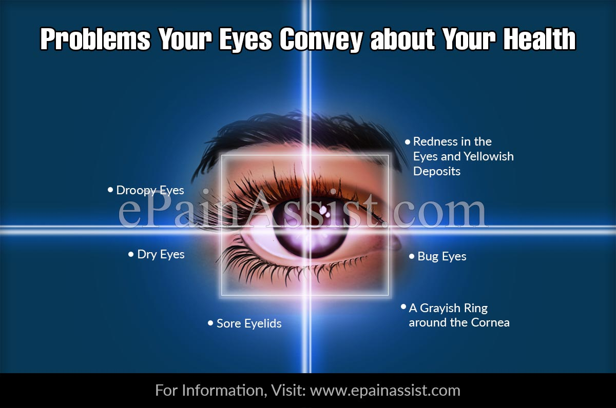 6 Problems Your Eyes Convey about Your Health