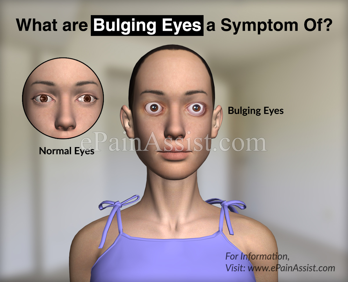What are Bulging Eyes a Symptom Of?