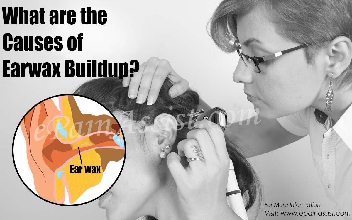 What are the Causes of Earwax Buildup & Ways to Get Rid of it?