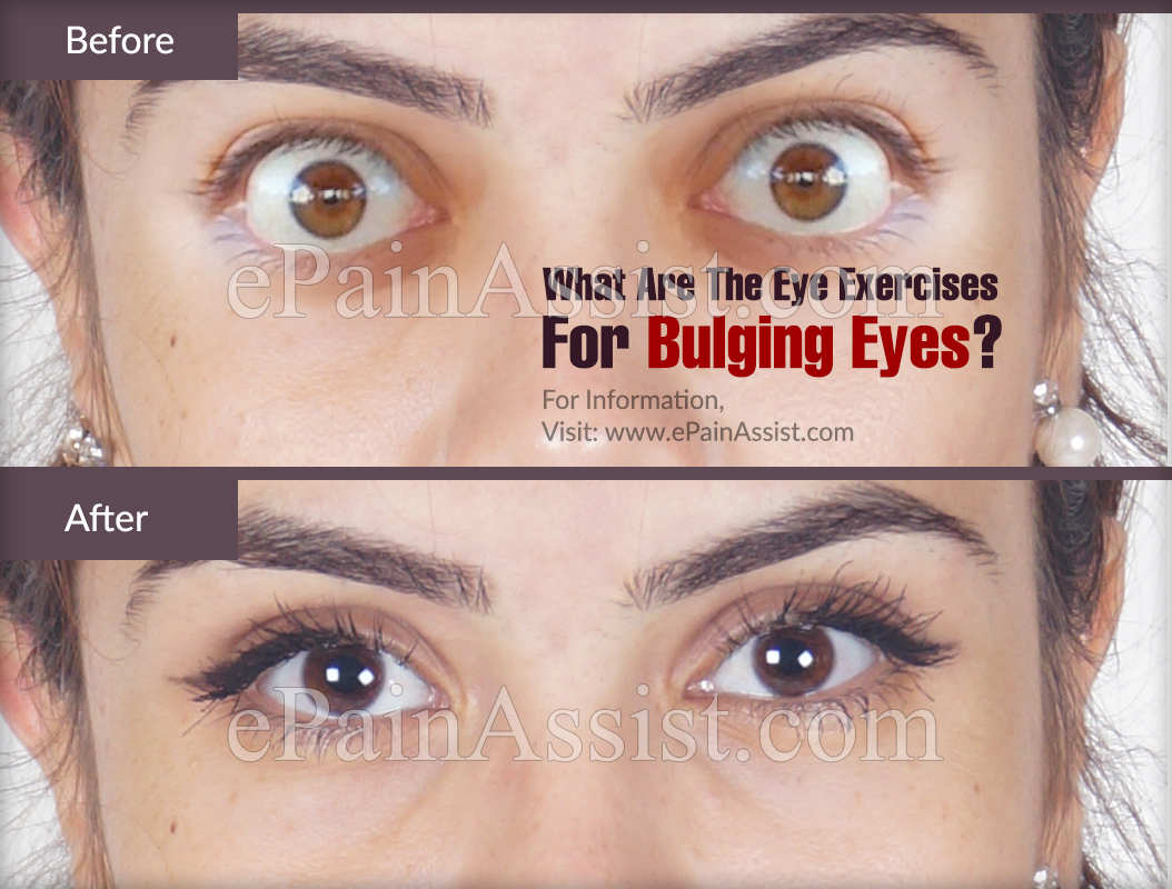 What are the Exercises For Bulging Eyes?