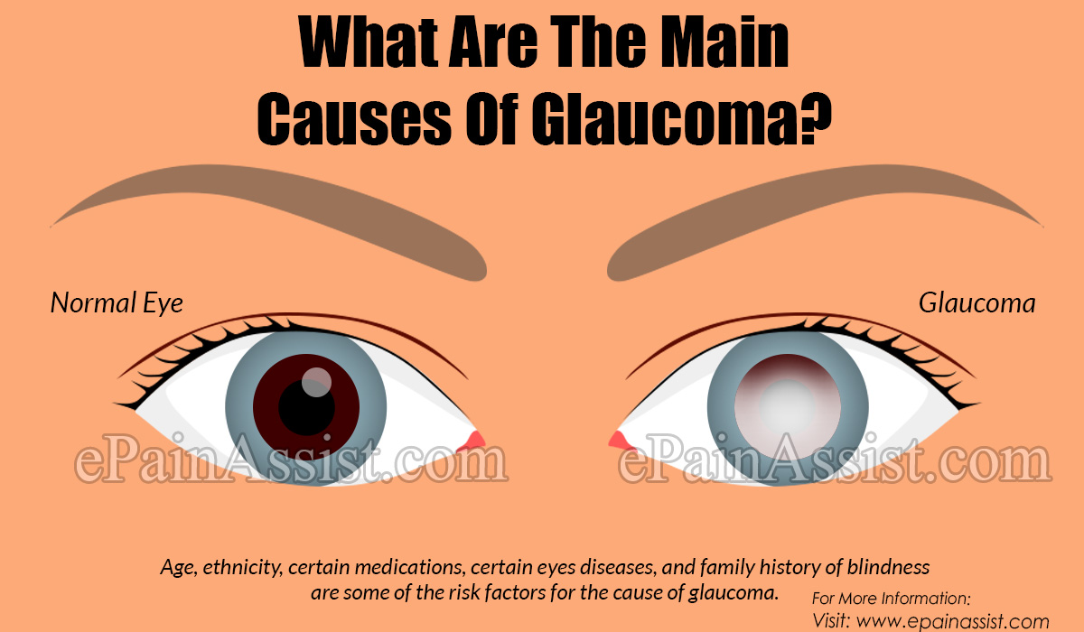 What Are The Main Causes Of Glaucoma?