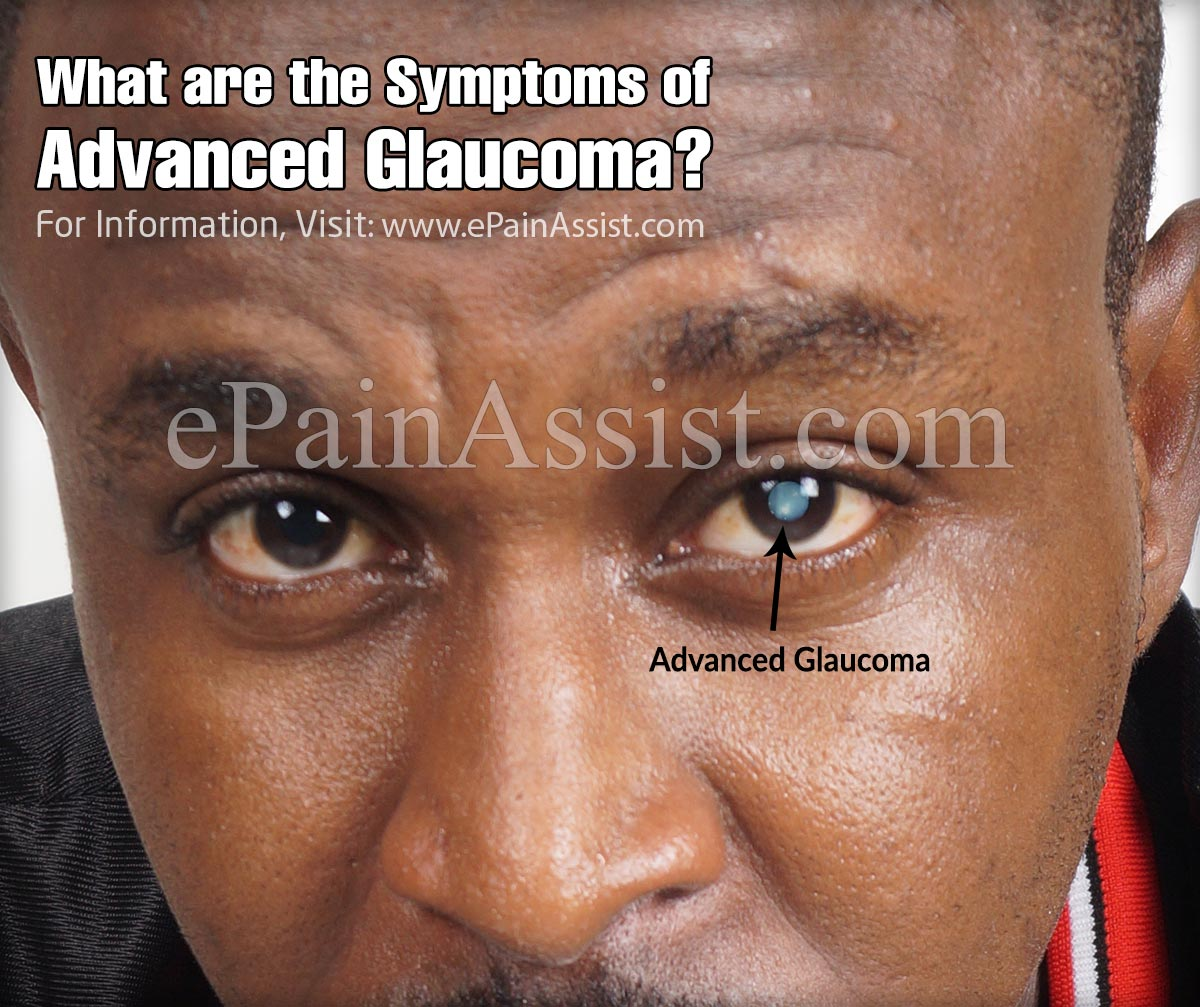 What are the Symptoms of Advanced Glaucoma?