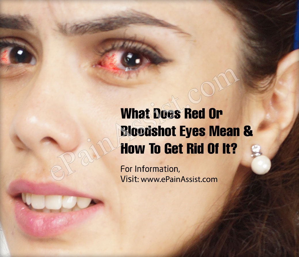 What Does Red Or Bloodshot Eyes Mean & How To Get Rid Of It?