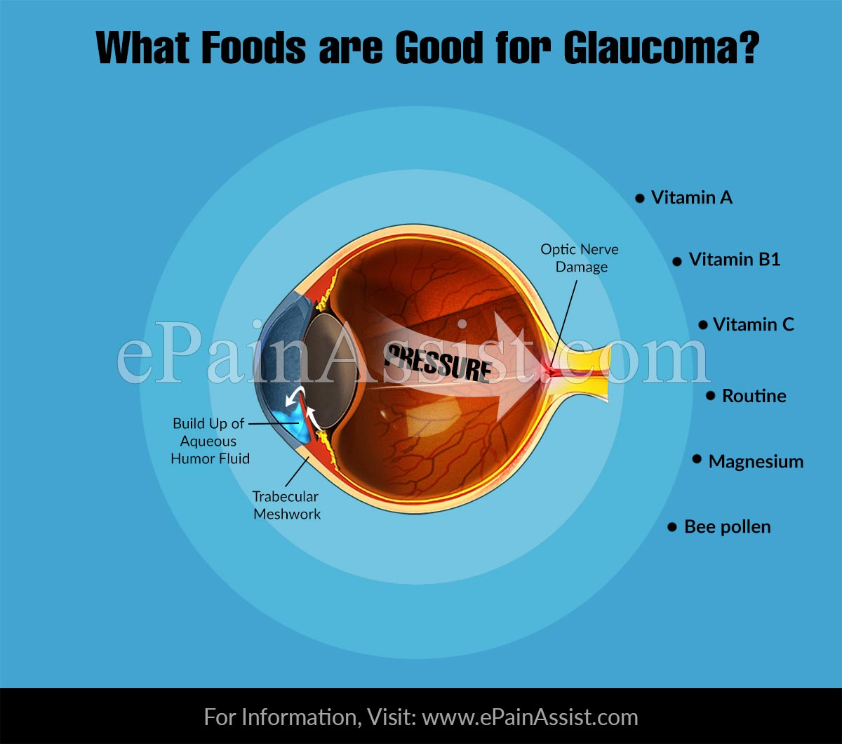What Foods are Good for Glaucoma?