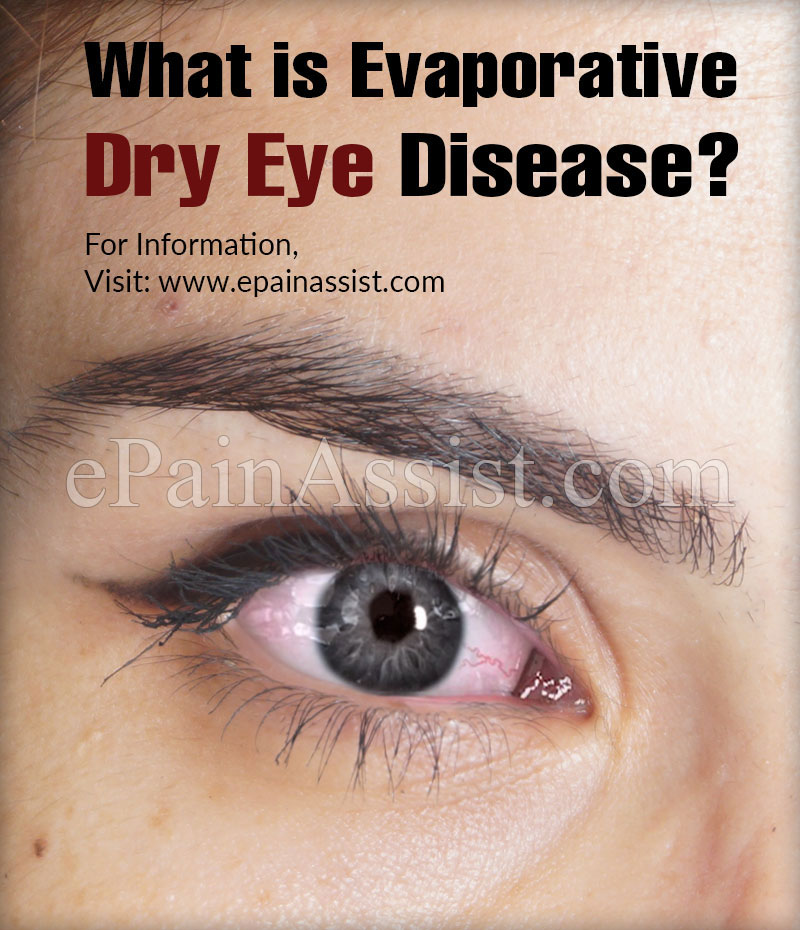 What is Evaporative Dry Eye Disease?