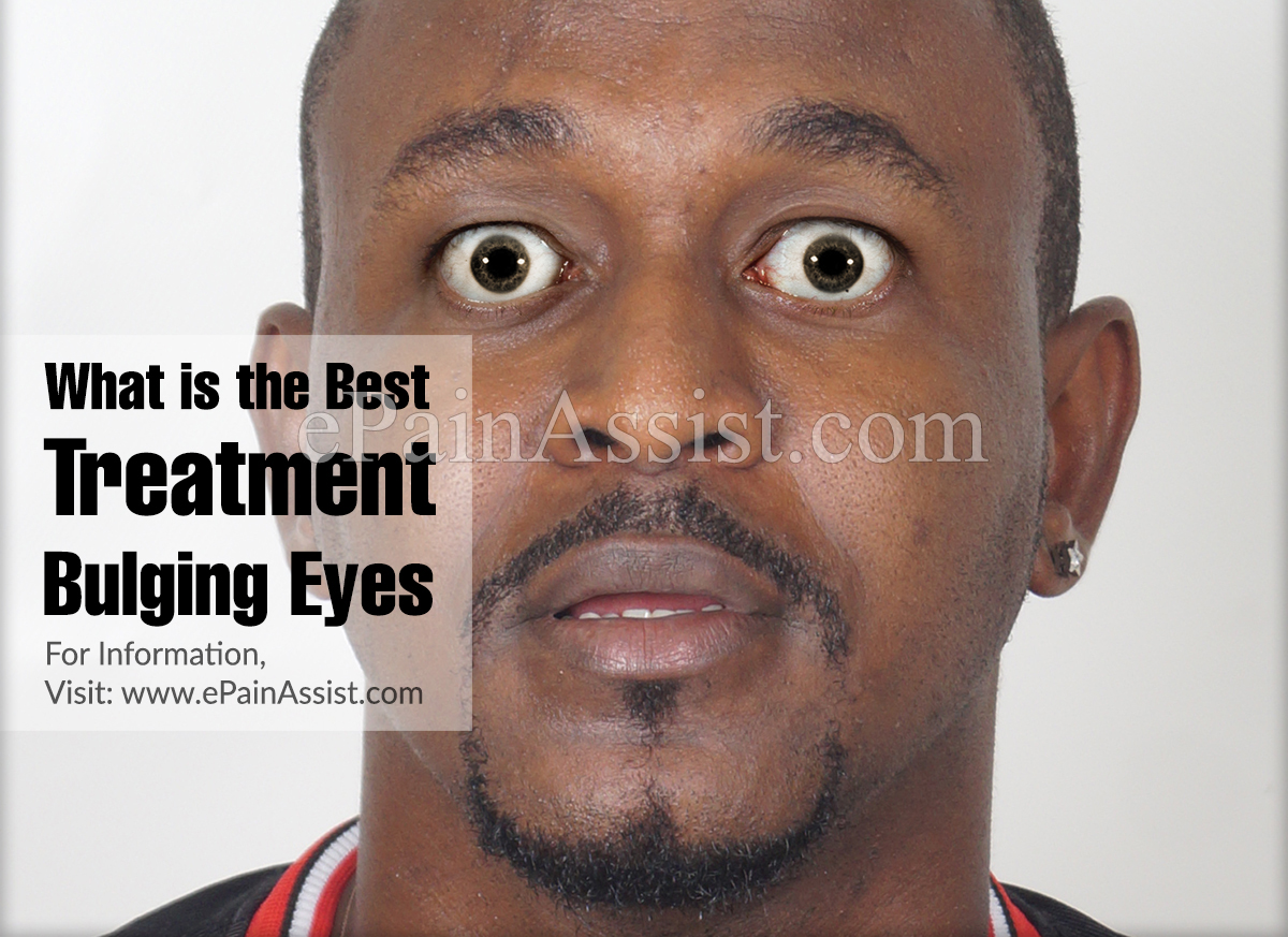 What is the Best Treatment for Bulging Eyes?