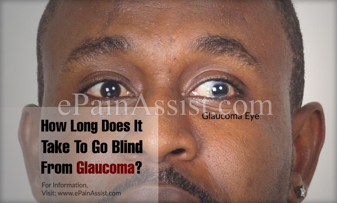 How Long Does It Take To Go Blind From Glaucoma?