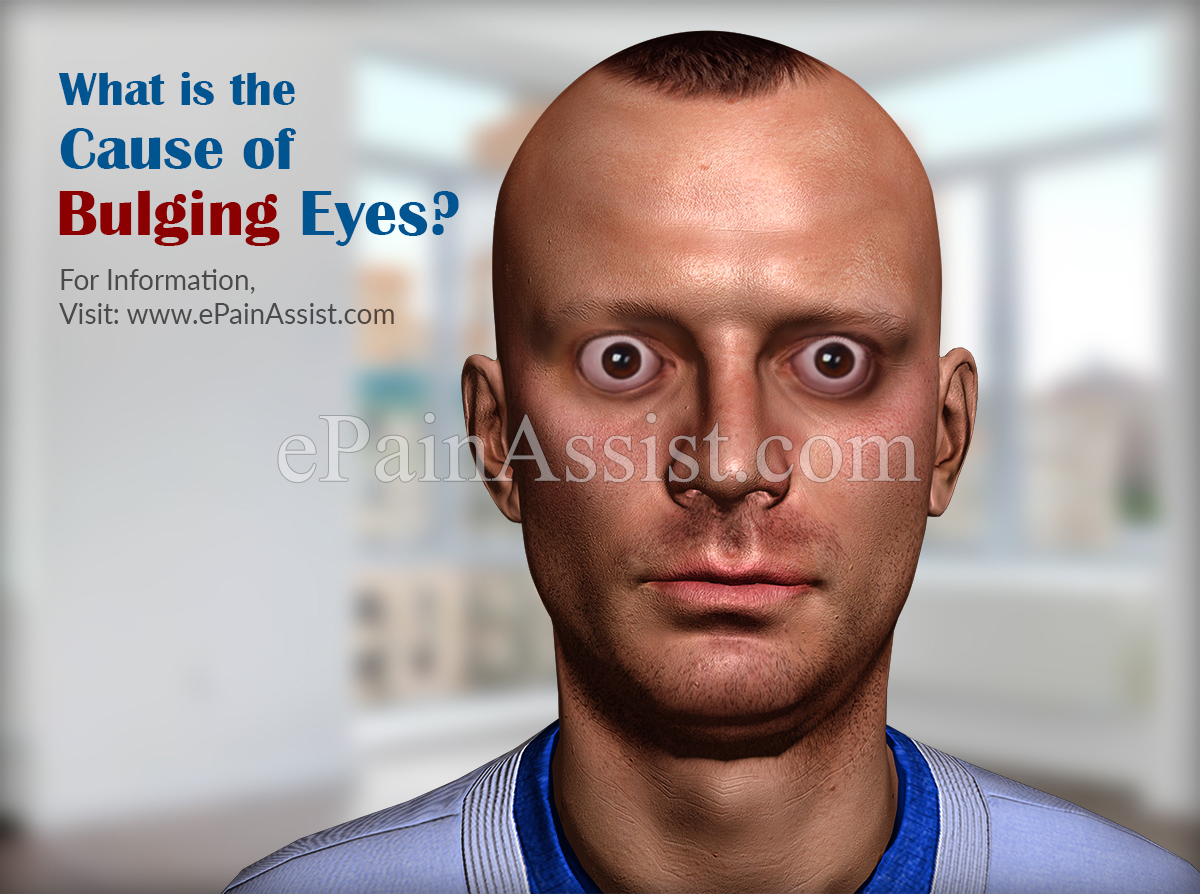 What is the Cause of Bulging Eyes?