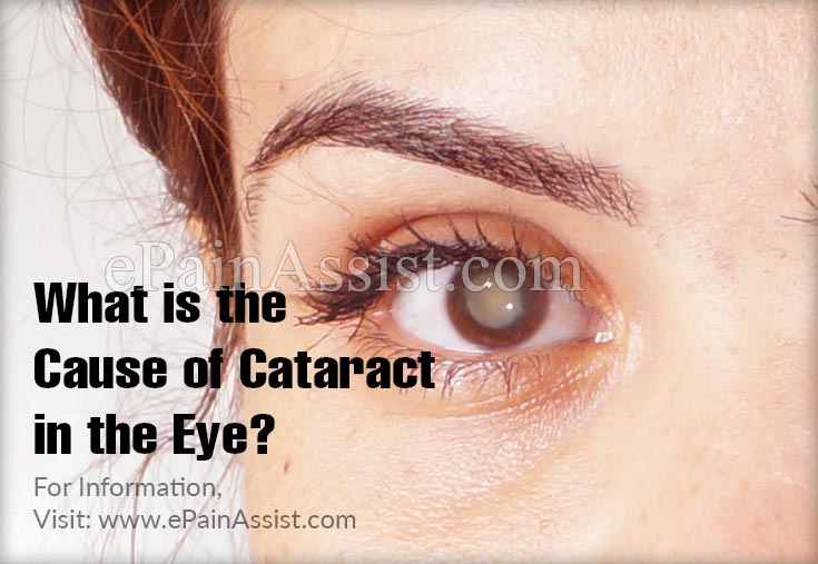 What is The Cause of Cataract in The Eye?