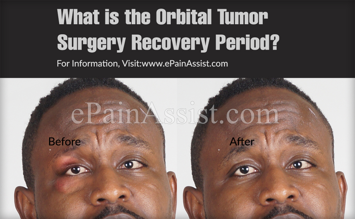 What is the Orbital Tumor Surgery Recovery Period?