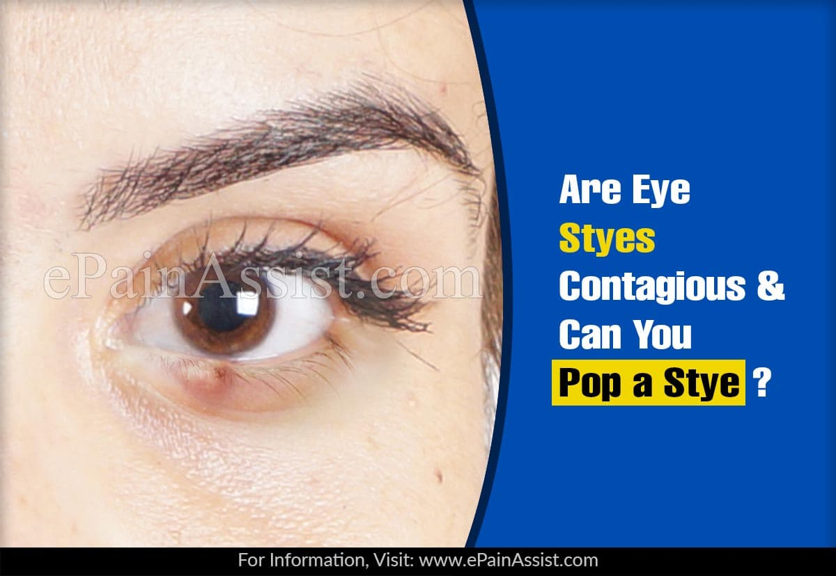 Are Eye Styes Contagious & Can You Pop a Stye?