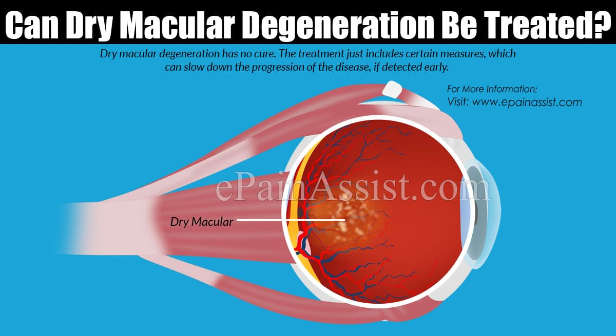 Can Dry Macular Degeneration Be Treated?