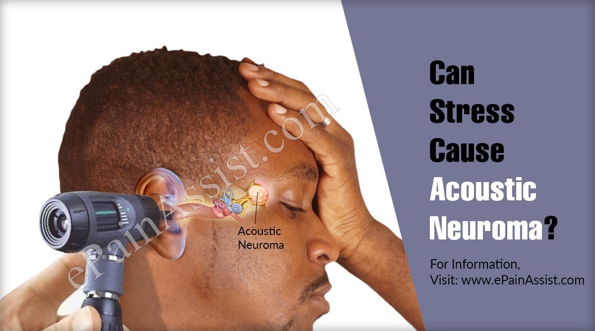 Can Stress Cause Acoustic Neuroma?