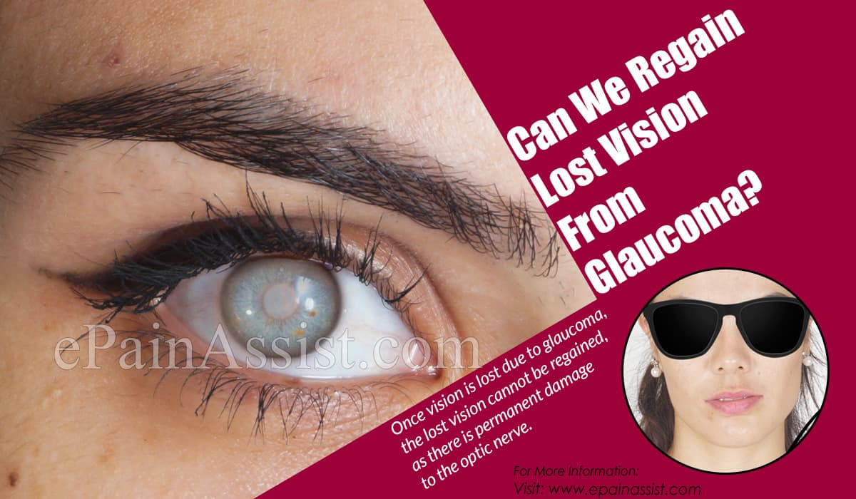 Can We Regain Lost Vision From Glaucoma?