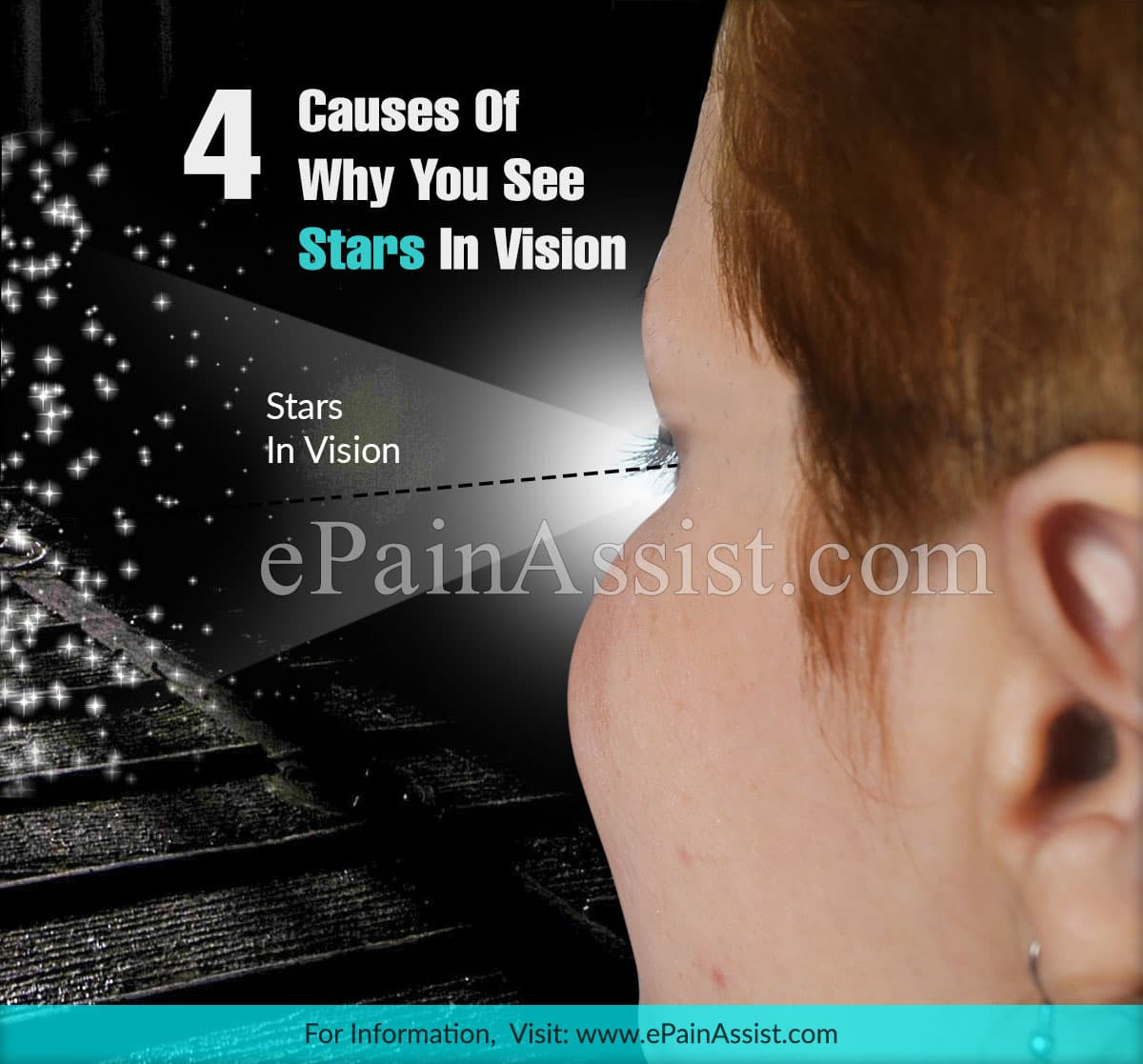 4 Causes Of Why You See Stars In Vision
