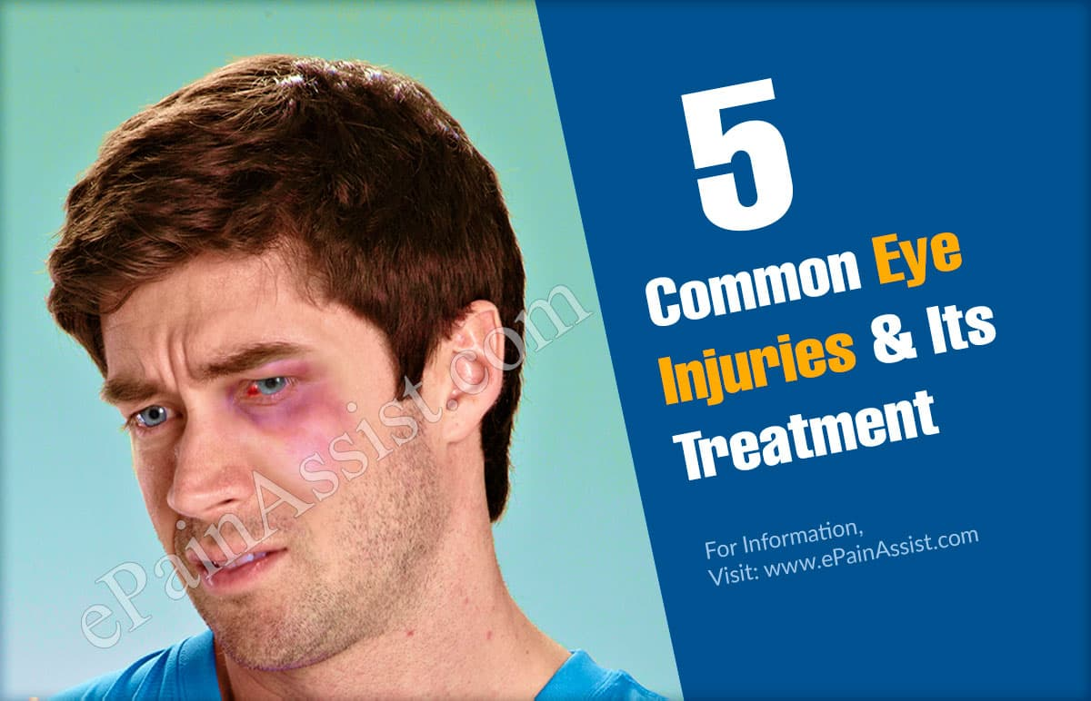 5 Common Eye Injuries & Its Treatment