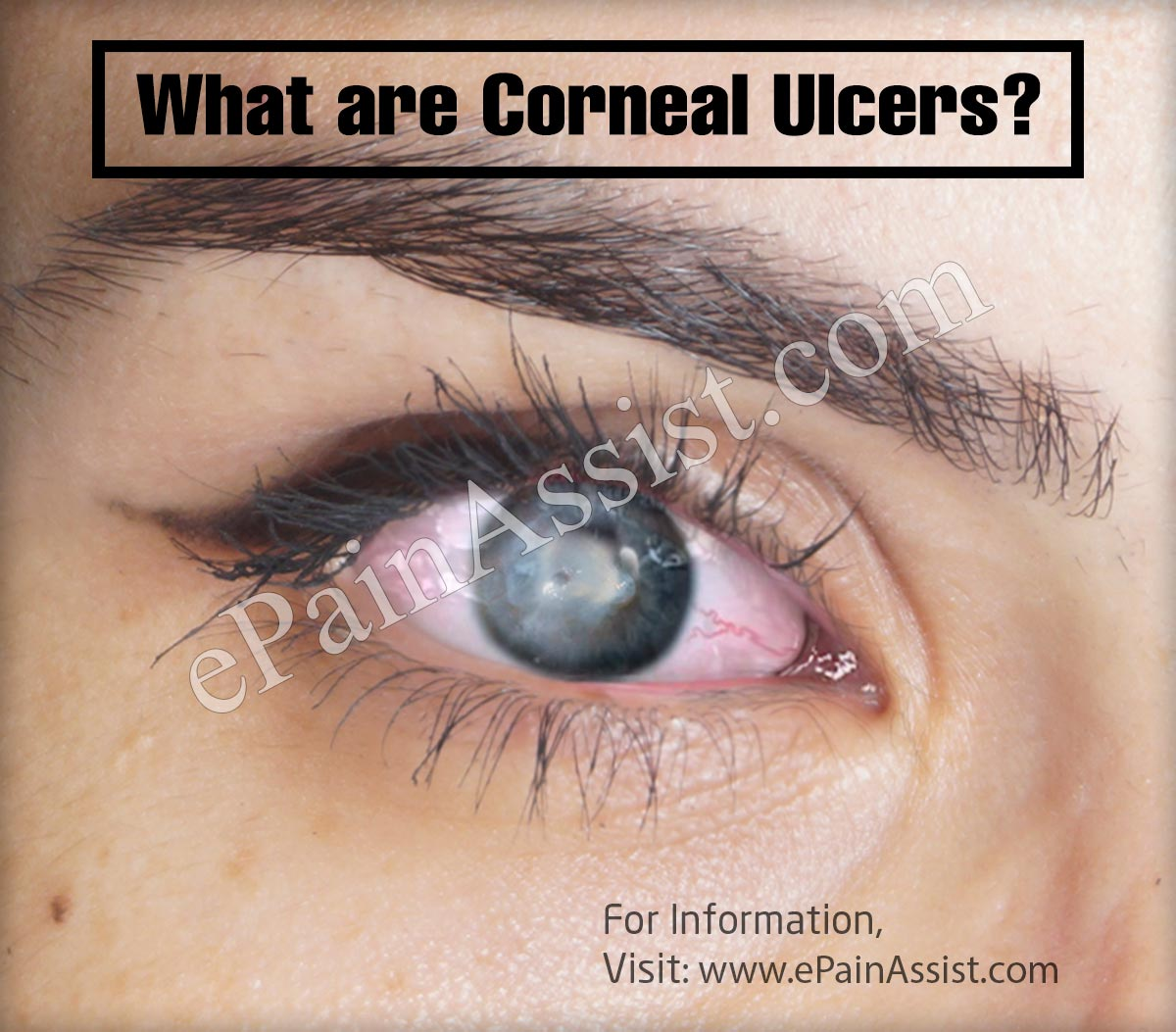 What are Corneal Ulcers?