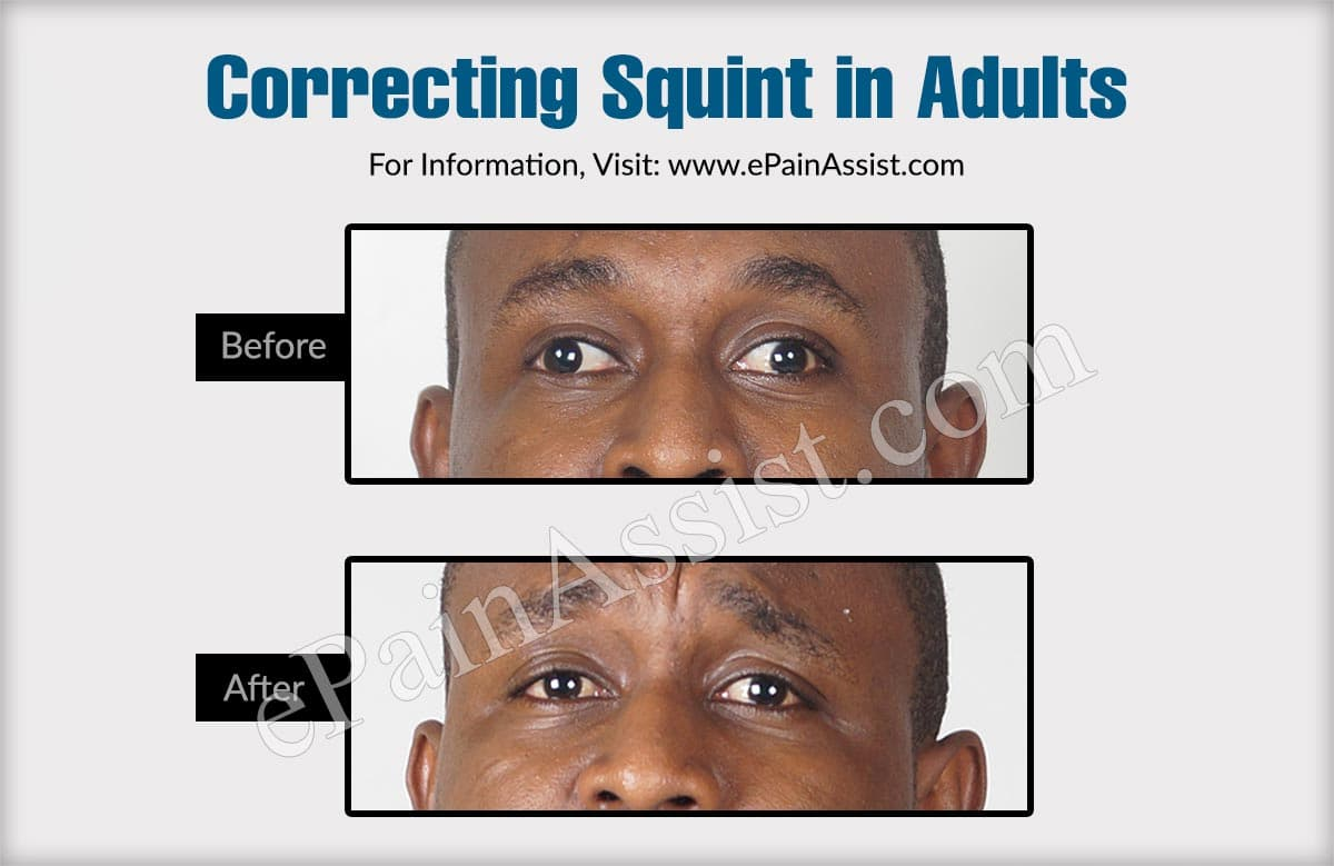 Correcting Squint in Adults