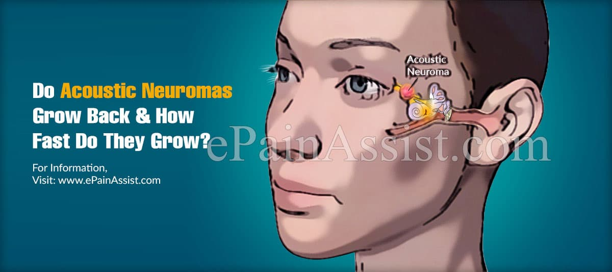 Do Acoustic Neuromas Grow Back & How Fast Do They Grow?