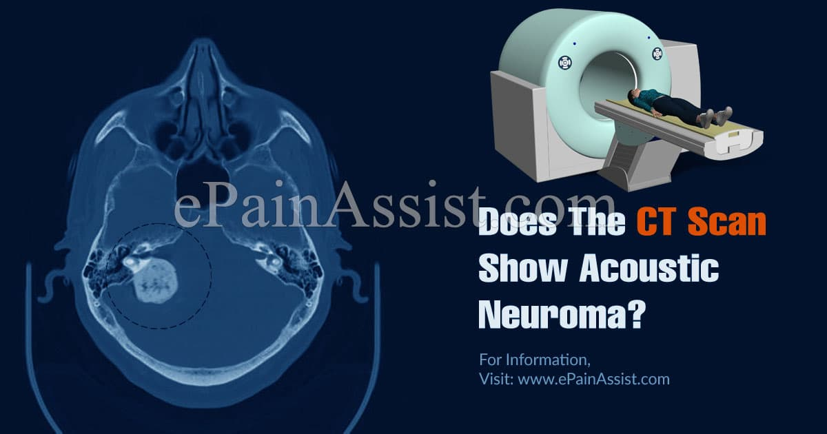 Does The CT Scan Show Acoustic Neuroma?