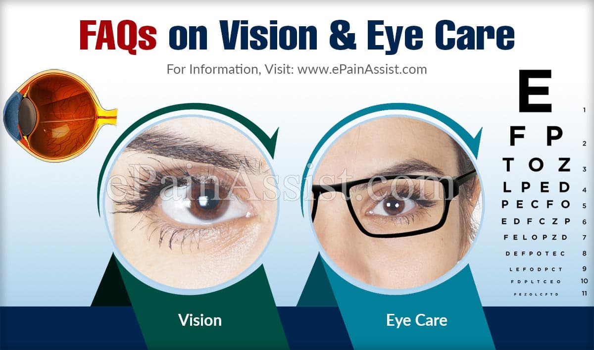FAQs on Vision & Eye Care