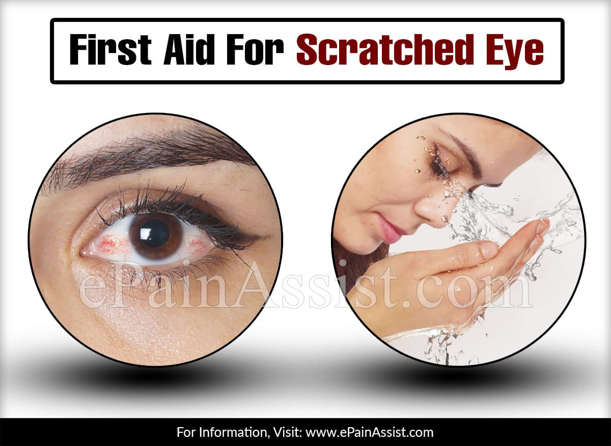 First Aid For Scratched Eye