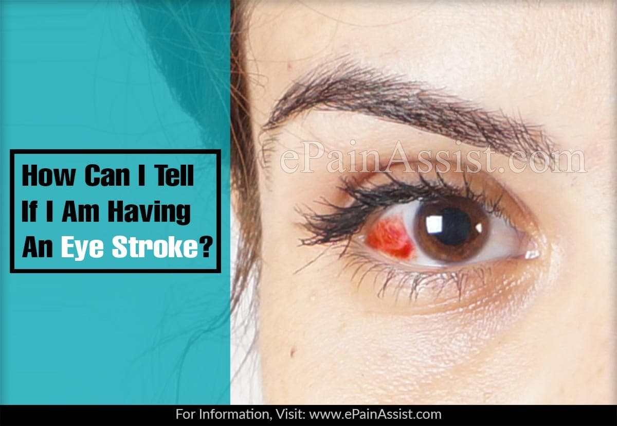 How Can I Tell If I Am Having An Eye Stroke?