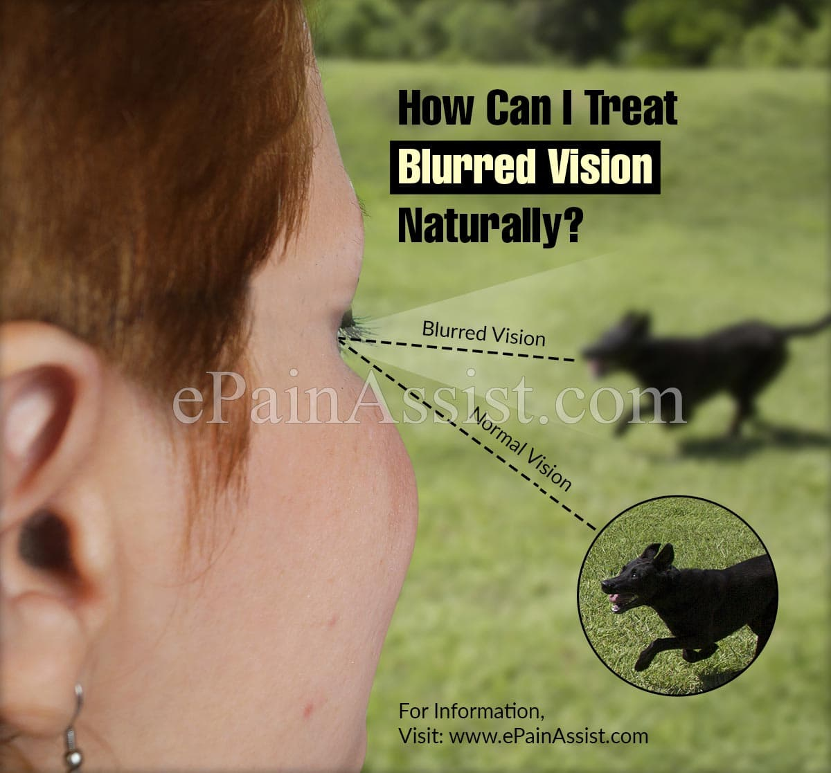 How Can I Treat Blurred Vision Naturally?